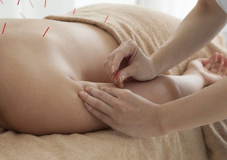 Acupuncturist Near Me