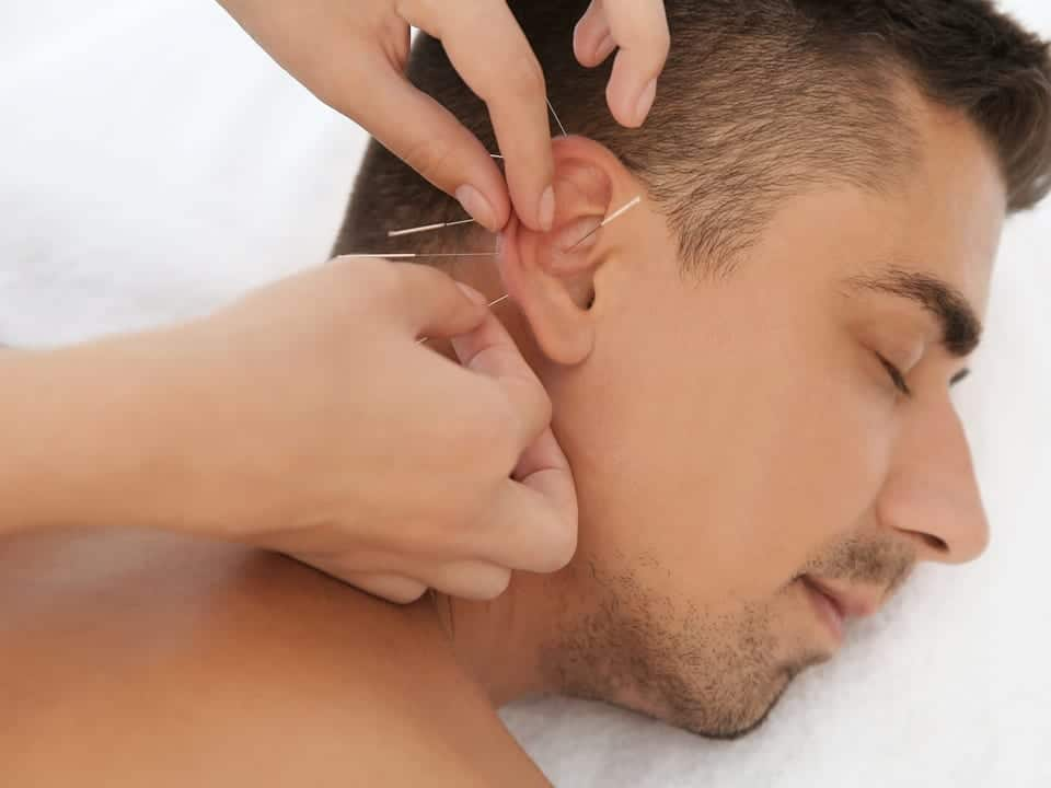 Burlington Acupuncture Near Me for Stress