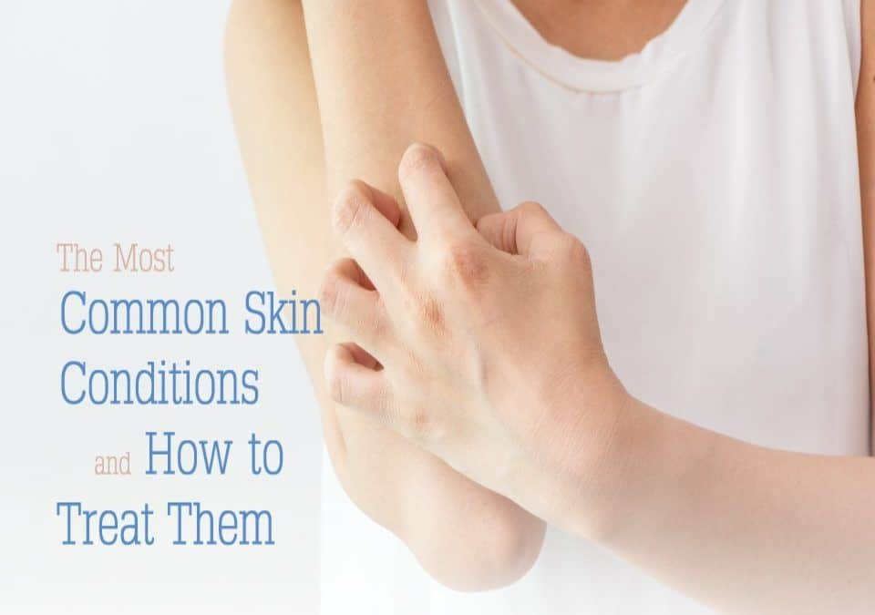 Skin conditions can be treated drug-free by a Naturopathic Doctor