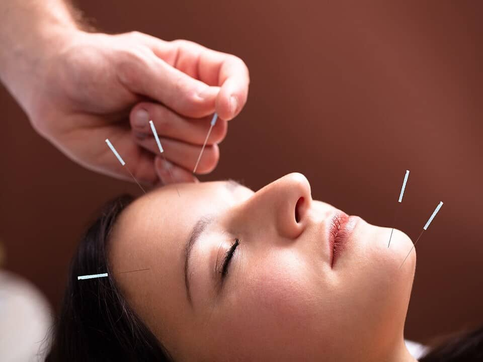 Acupuncture-For-Migraines-And-Headaches